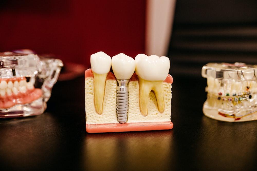 endodontist vs oral surgeon