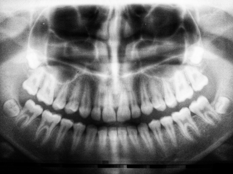 Root Canal Treatment Questions