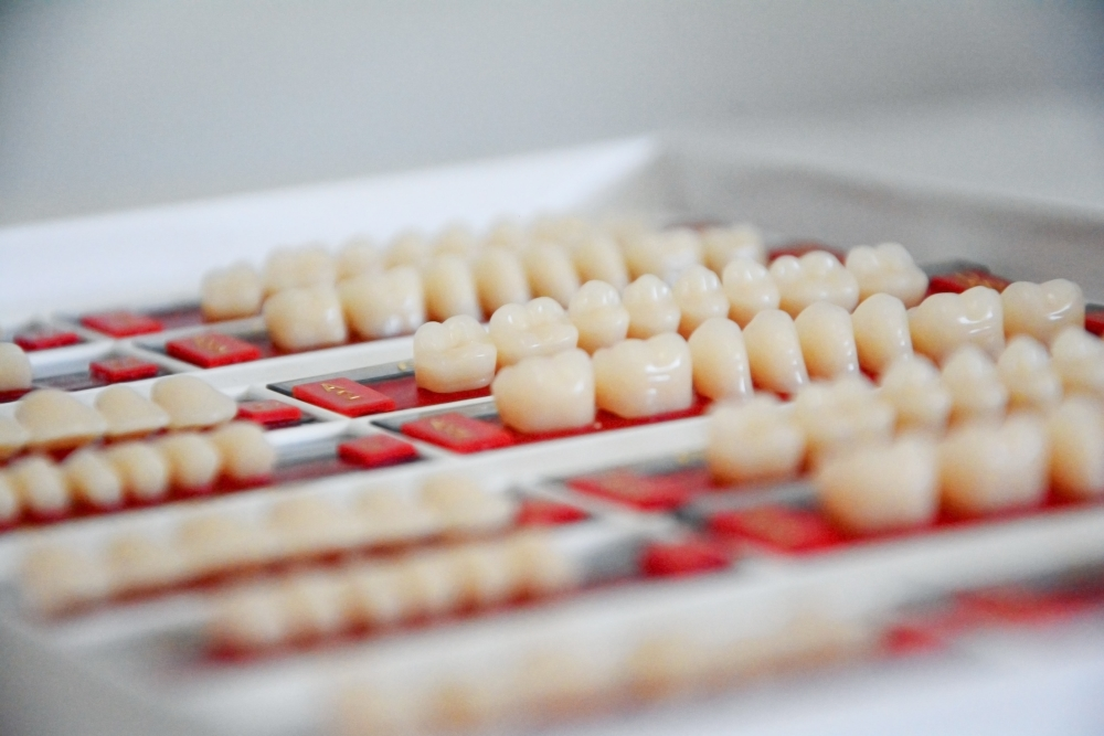 Root Canal vs Extraction and Implant