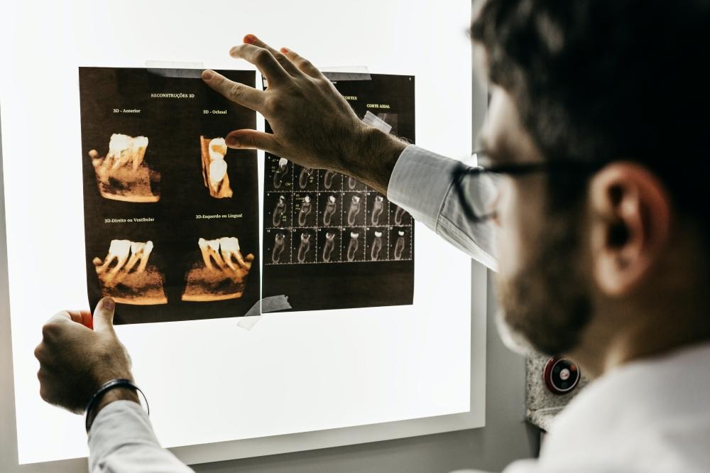prosthodontist vs endodontist